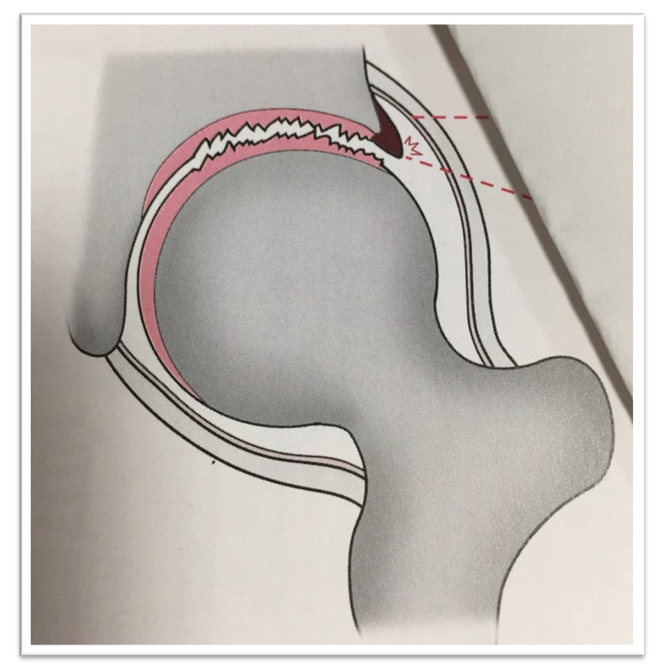 滑膜と関節唇