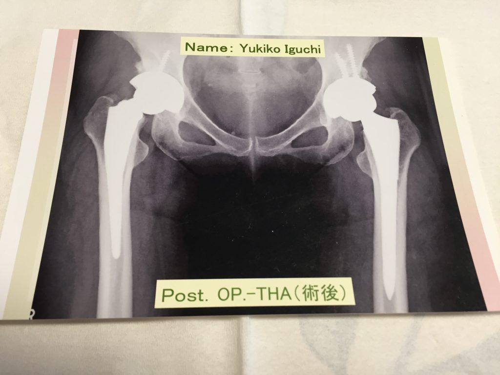 人工股関節の手術を控えた患者さんは人工股関節についてもっと知るべきだと思う