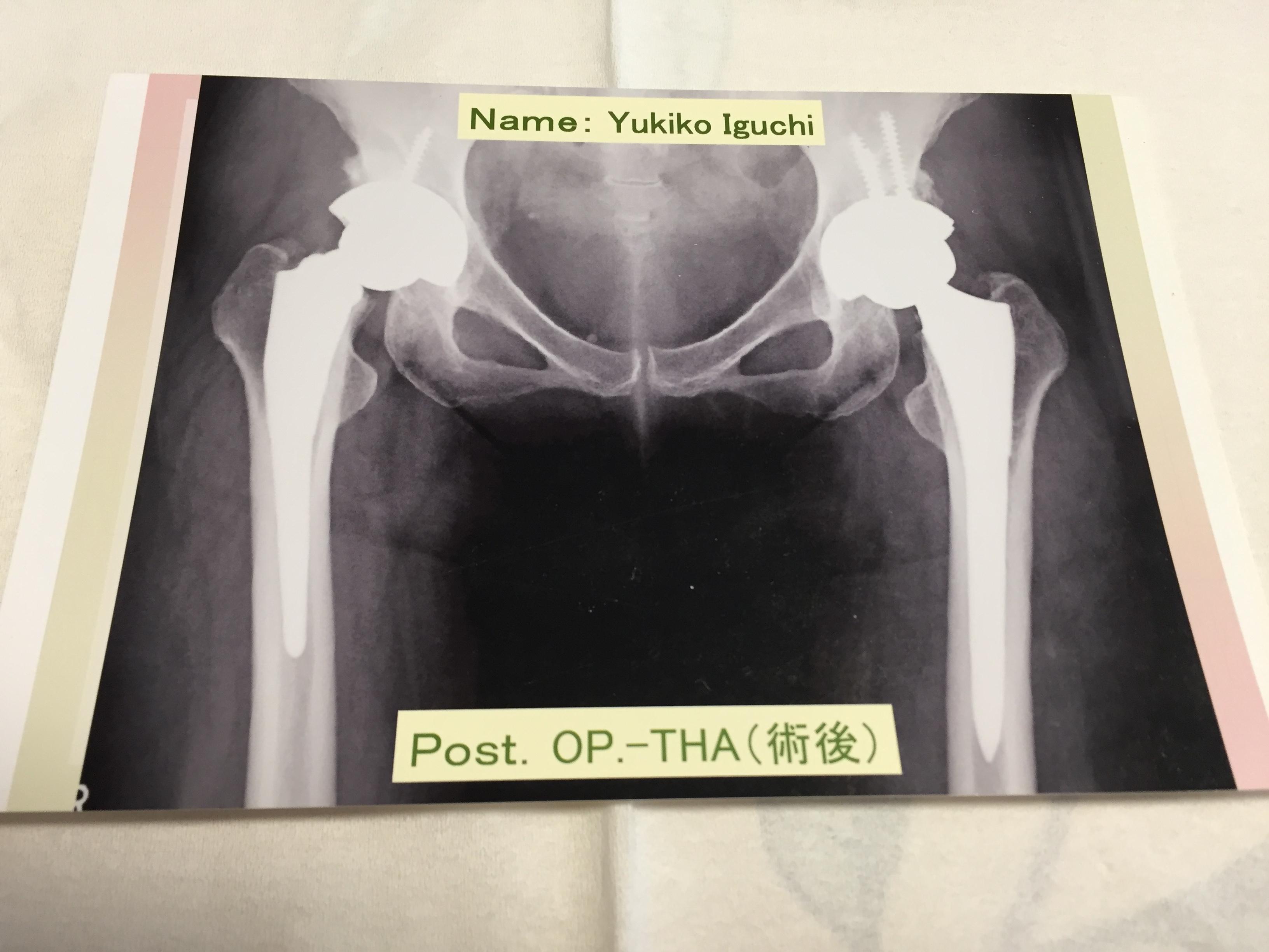 【変形性股関節症】人工股関節再置換術について
